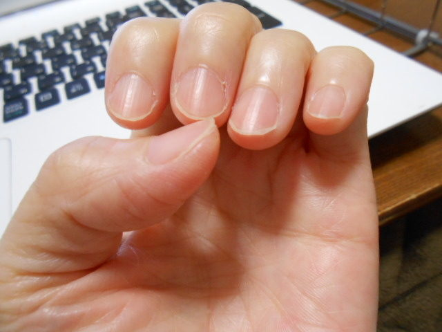 完治した二枚爪